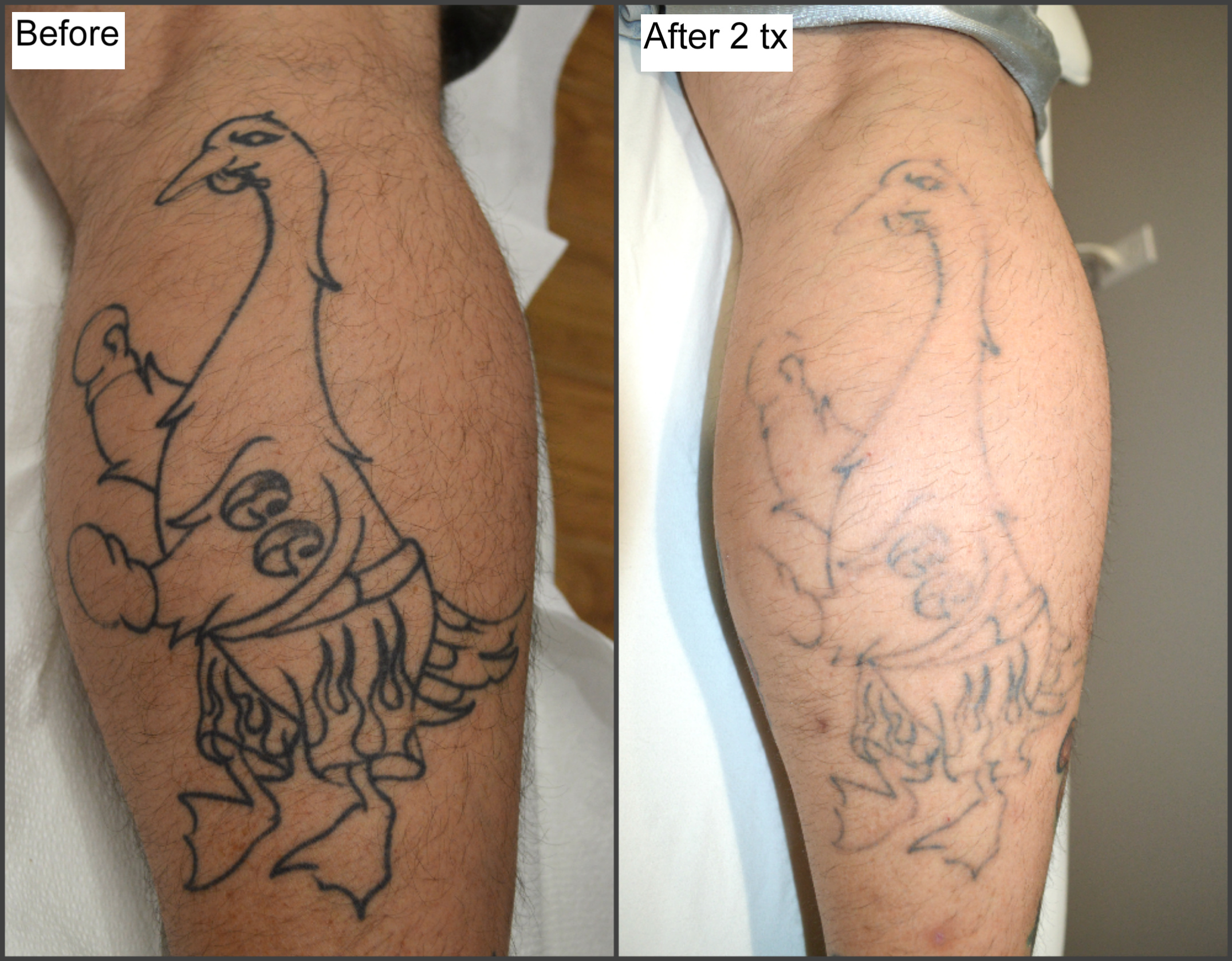 Tattoo Removal With Picosure What You Need To Learn