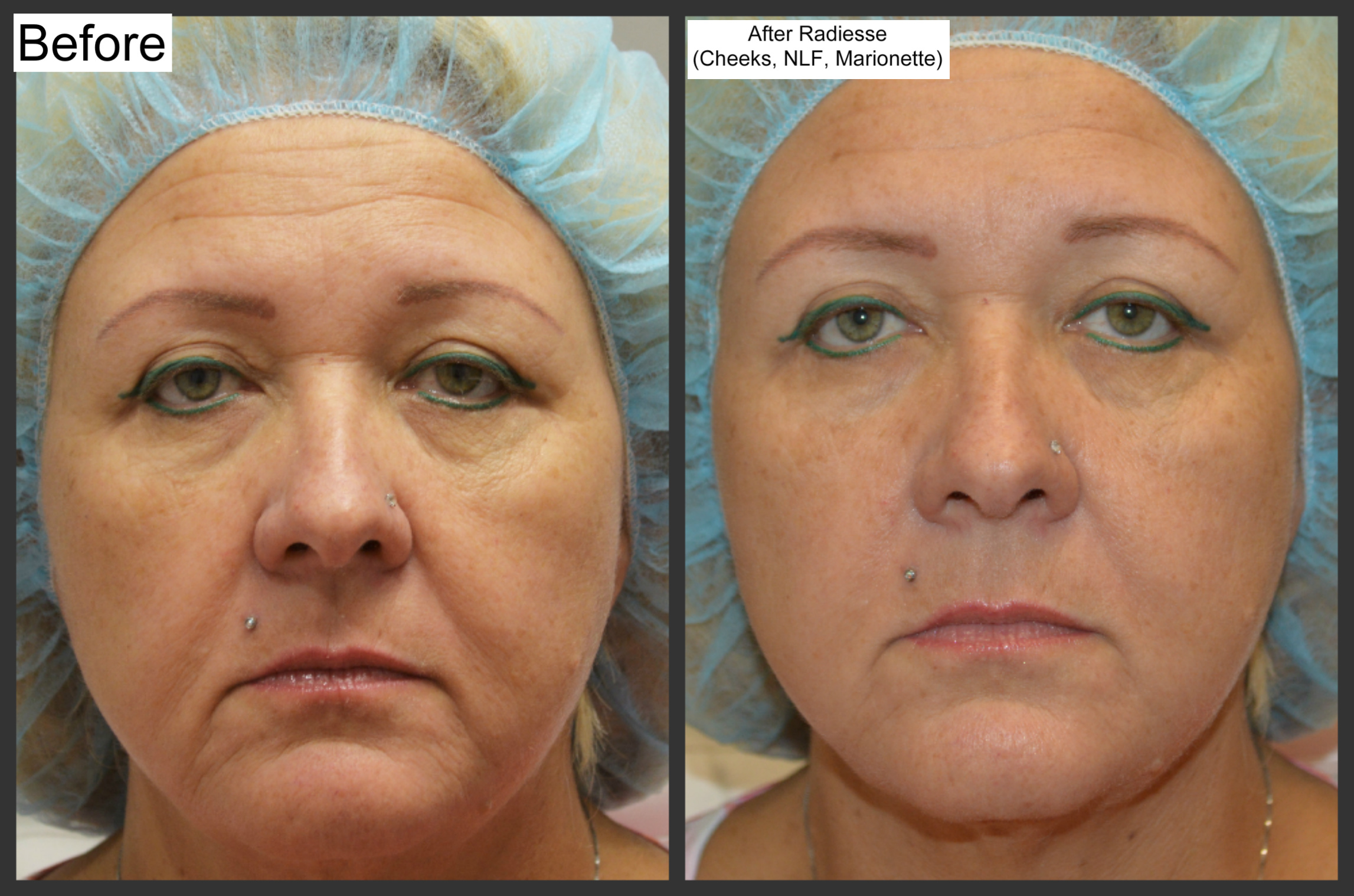 Are not Commercial facial line fillers congratulate